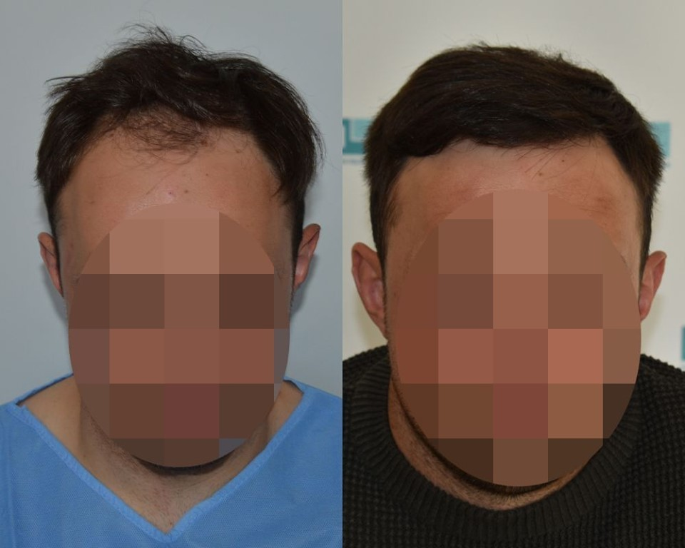Direct hair implantation